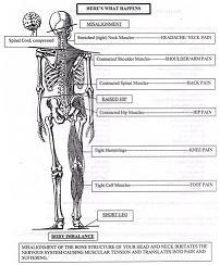 skeletal imbalance